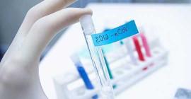 Нехватка тестов заставляет местных чиновников здравоохранения резко менять стратегию