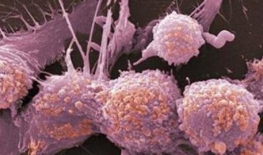 Comment le cancer Eats elle-même pour survivre Nos thérapies