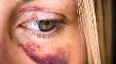 violence domestique 2 25