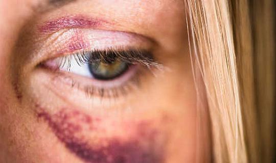 keganasan rumah tangga 2 25