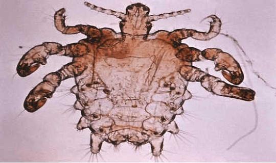 恥骨やカニのシラミは、「そこ」の湿潤環境に適応しています。 疾病管理予防センター(CDC)、CC BY