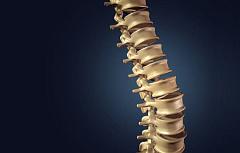 La mejor manera de evitar el dolor de espalda es levantar cosas pesadas