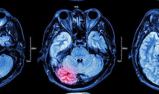 Como as lesões mudam nosso cérebro e como podemos ajudá-lo a se recuperar