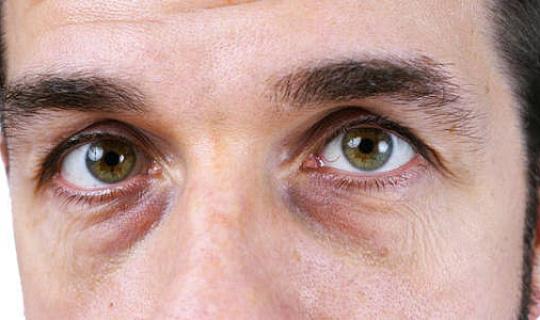 Por que temos círculos escuros sob nossos olhos?