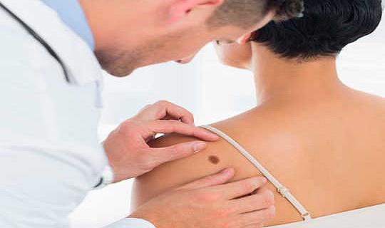 Varför ofta hudcancer kan vara ett stort varningsskylt