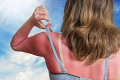 Qu'advient-il de votre peau lorsque vous obtenez un coup de soleil?
