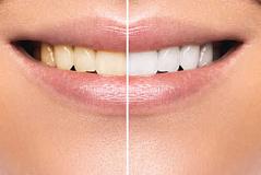 Blanqueamiento dental - No juegue con sus dientes