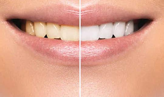 Tandblekning - Gnugga inte med dina tänder