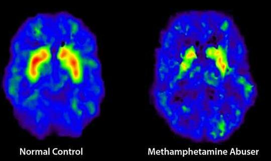 多巴胺禁食:專家評論最新的熱潮