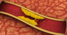 高い血中コレステロール