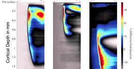 光学画像は、脳における広がった脱分極の波を示す
