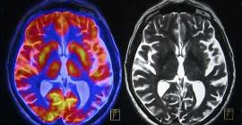 만성 스트레스가 뇌를 변화시키는 방법과 피해를 되돌릴 수있는 방법