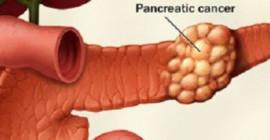 Membunuh Cancer Dengan Bakteria Radioaktif